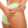 Come prevenire la cellulite