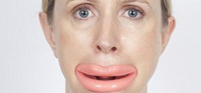 Addio alle rughe con le labbra di plastica!