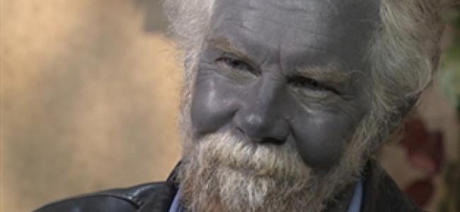 E' morto il Grande Puffo: l'uomo dalla pelle blu