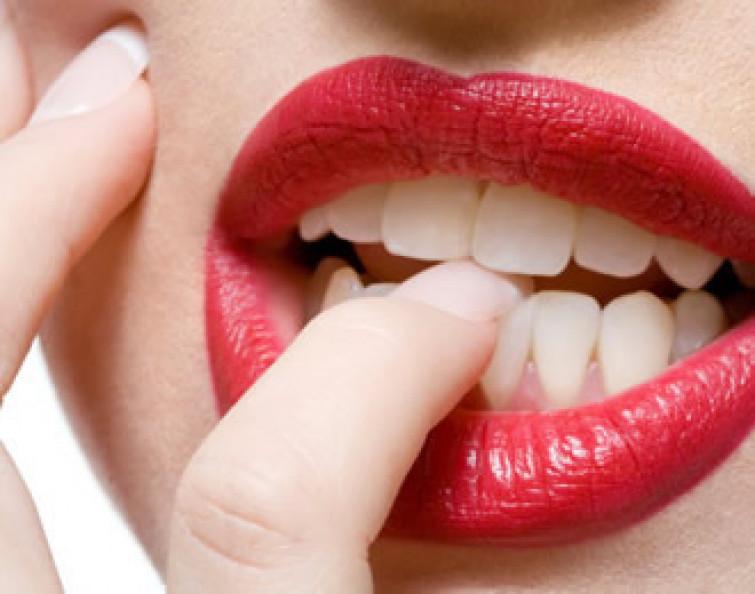 Onicofagia: ecco come mettere k.o. la pessima abitudine di rosicchiarsi le unghie!