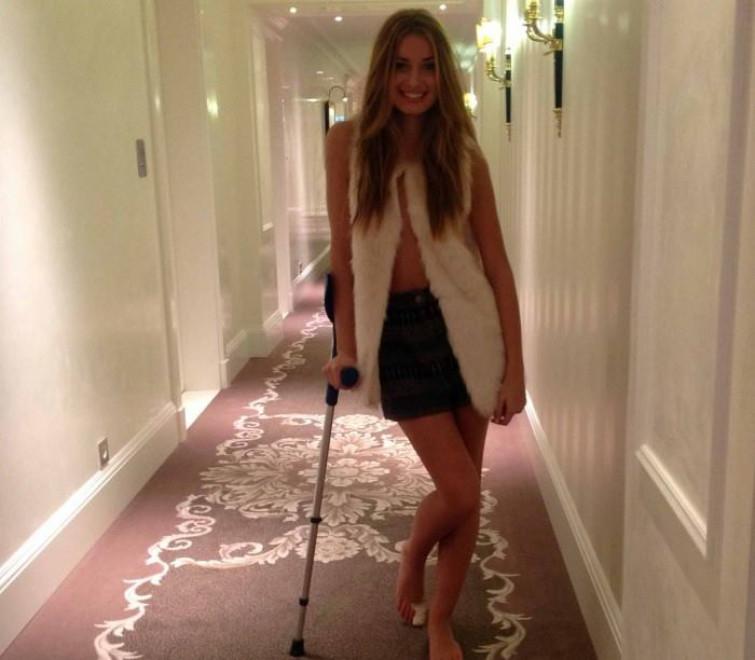 Giulia Arena con le stampelle: Miss Italia torna a Messina e si fa male [FOTO]