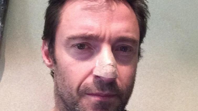 Hugh Jackman operato di tumore maligno alla pelle