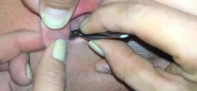 Aveva una farfalla nell'orecchio: ecco come l'hanno tirata fuori [VIDEO]