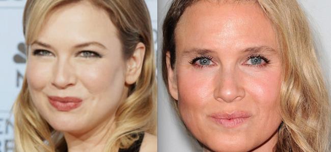 Renee Zellweger trasformata dalla chirurgia estetica [FOTO]
