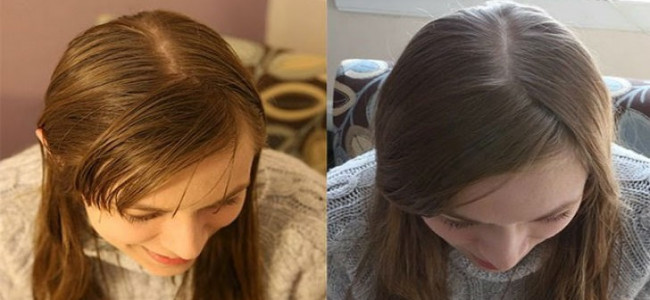 Si lavano i capelli con il bicarbonato da 20 giorni e  i capelli diventano più belli e luminosi