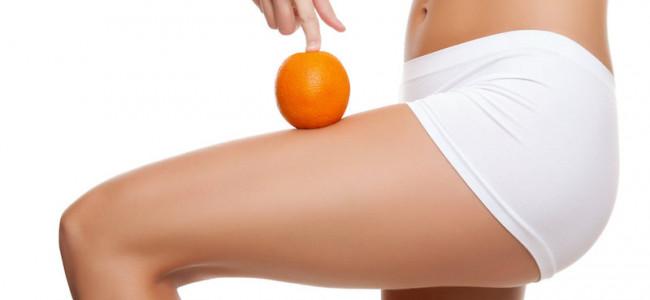 Cellulite: 10 consigli per contrastarla definitivamente