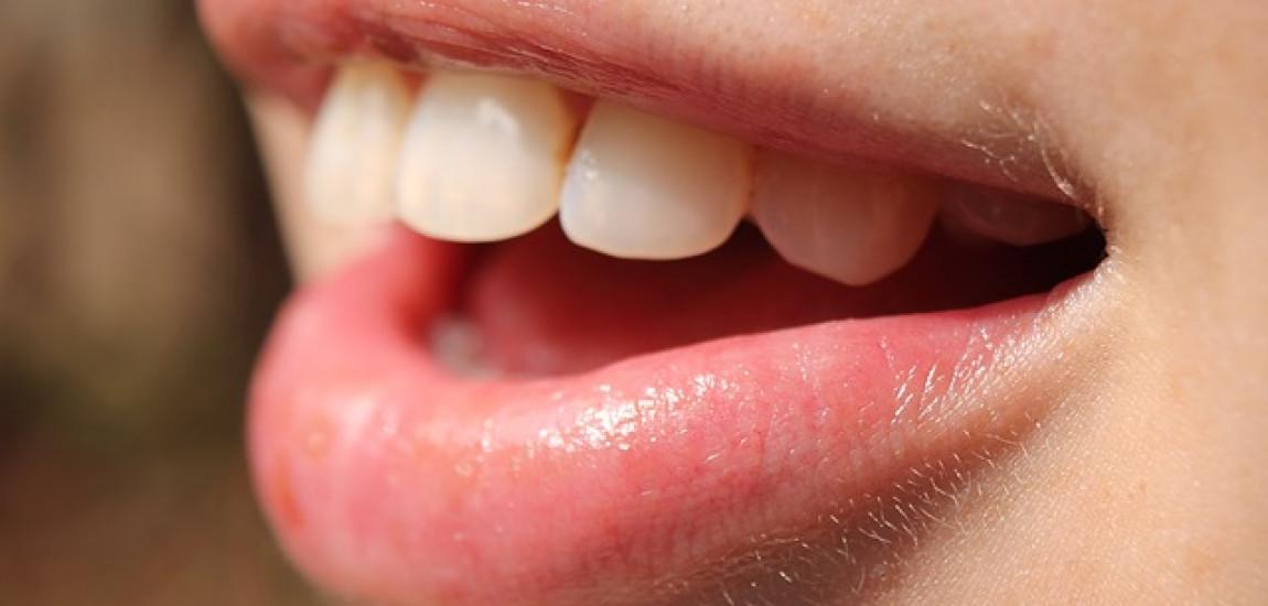 Afte in bocca: farmaci per la cura e il trattamento delle afte