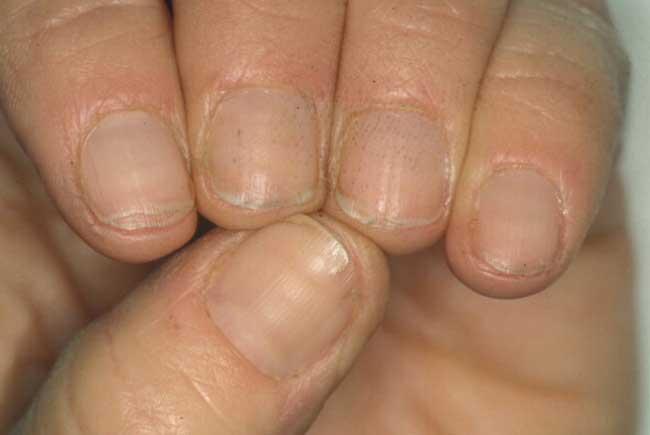 Le unghie su mani la ragione e il trattamento crescono bianche