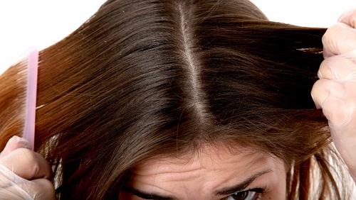 I capelli dopo la consegna quello che lava abbandonano