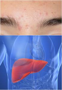 centro sopracciglia fegato